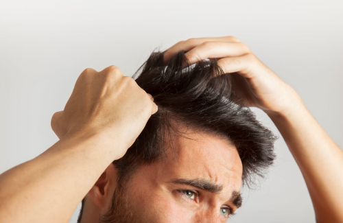 Hair Loss Causes and Solutions